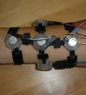 Haptics for Prosthetics